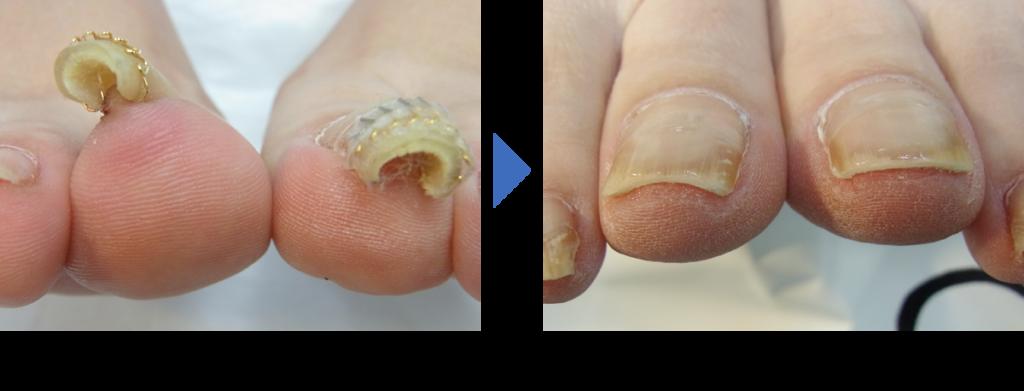 重度巻き爪の施術前後の症例写真 埼玉巻き爪矯正院川越院