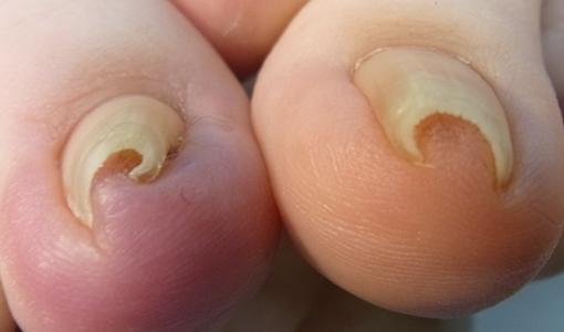 川口市巻き爪専門院 巻き爪画像 埼玉巻き爪矯正院