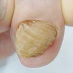 埼玉巻き爪矯正院川口院 変形爪の症例