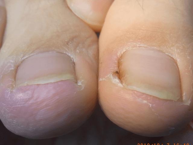 川口 巻き爪6