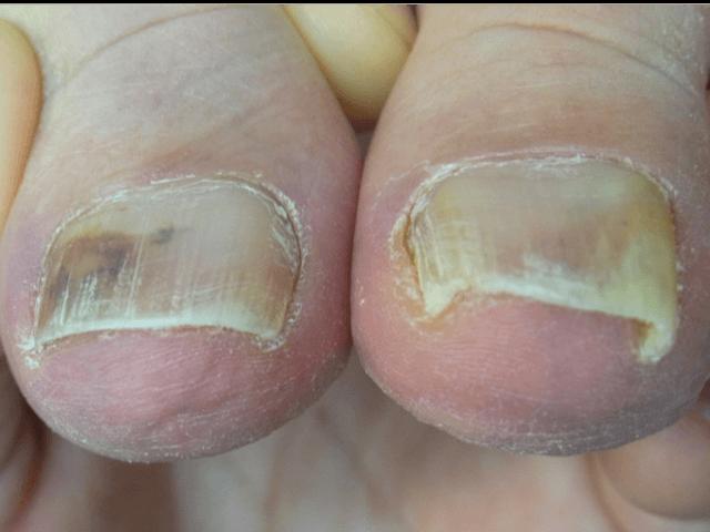 川口 巻き爪2