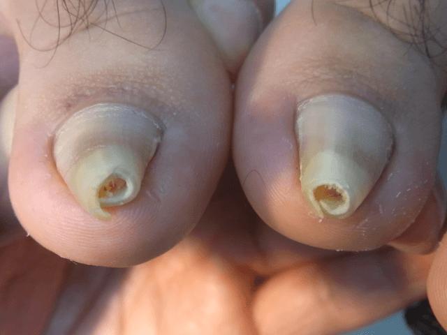川口 巻き爪7